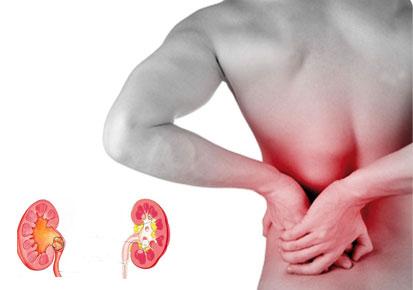 Kamen-u-bubregu-simptomi-izbacivanje-i-prirodno-lečenje