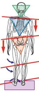 股関節痛に影響するバランス