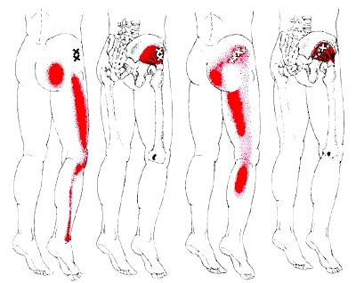 ヘルニア、脊柱管狭窄症、坐骨神経痛、発症部位