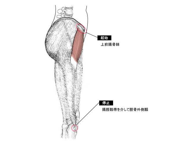 肋間神経痛の原因の大腿筋膜張筋