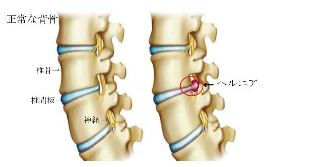 椎間板ヘルニアが発症