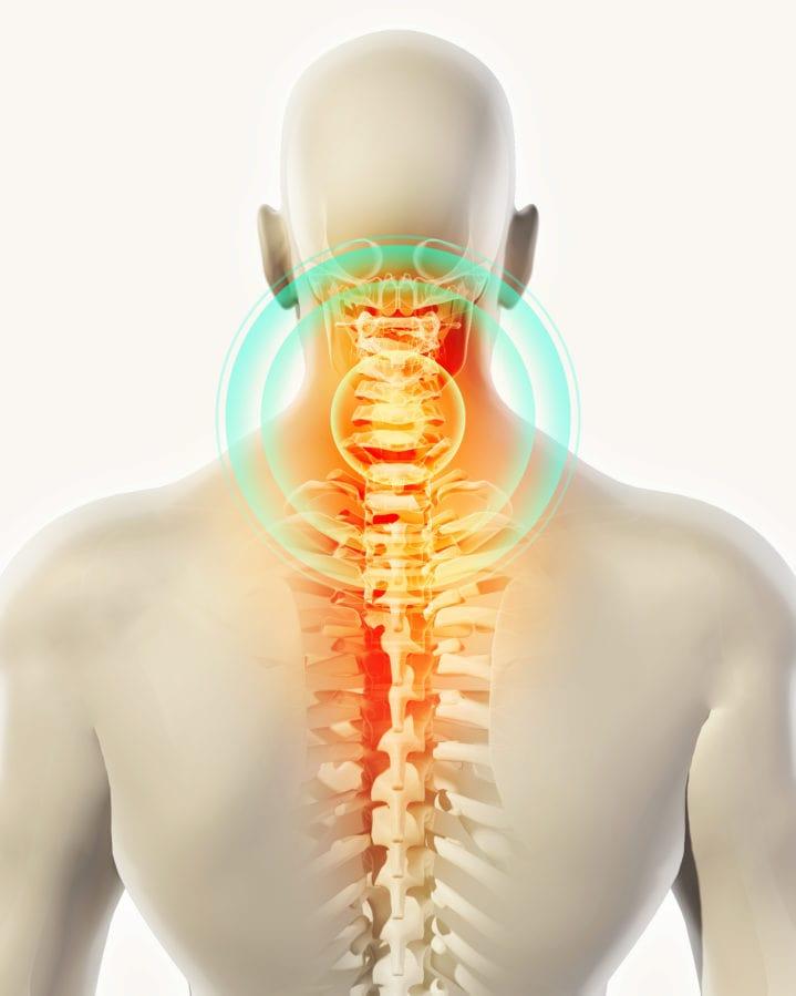 坐骨神経痛の改善ポイント 頚椎