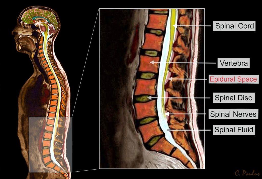 坐骨神経痛の改善ポイント 椎間板