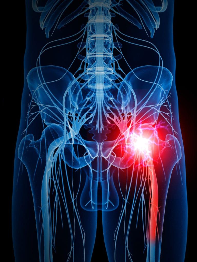 坐骨神経痛の発症部位