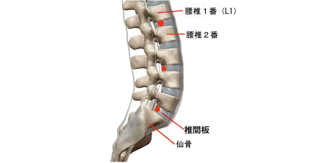 坐骨神経痛の原因になる椎間板の問題