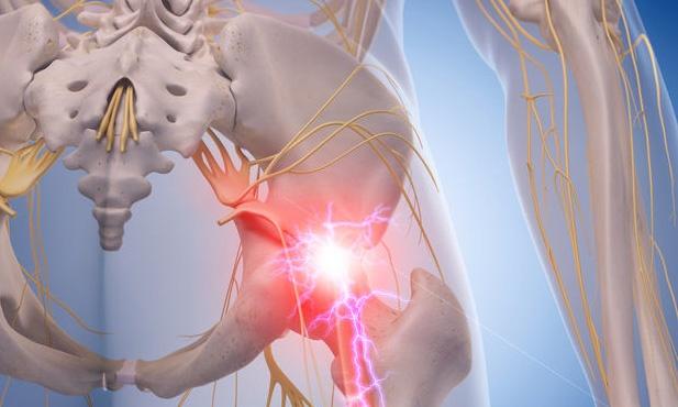 坐骨神経痛のイメージ画像