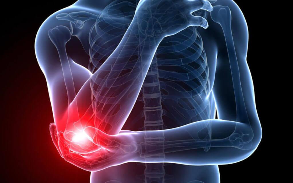 肘の痛みイメージ画像